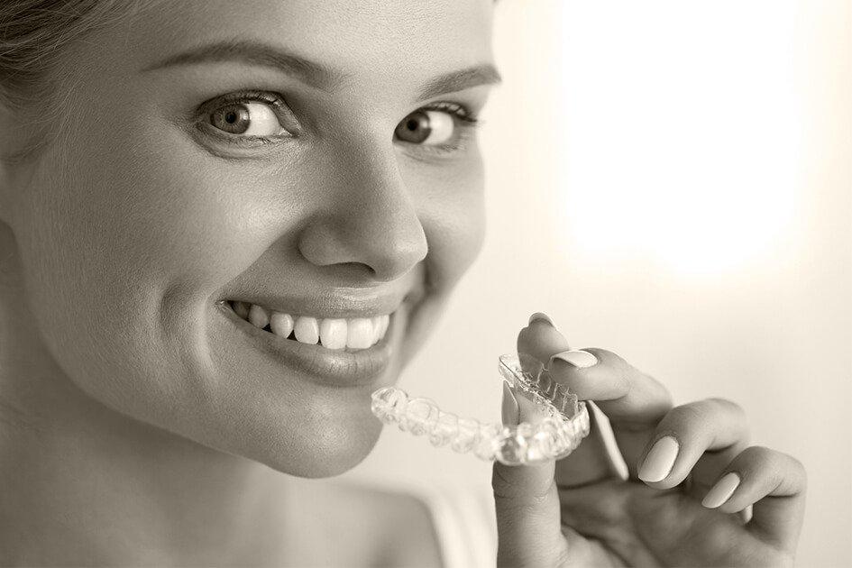 Invisalign Lite tratamiento de ortodoncia para casos leves para adultos en Valencia